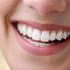 Sbiancamento dentale sì ma non fai da te