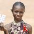 Circoncisione e terapie: così l'Aids può essere battuto