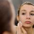 L'acne si cura a partire dalla tavola