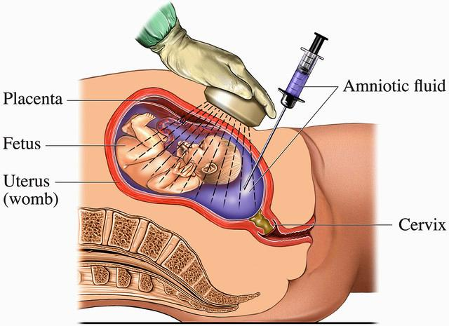 Amniocentesis Pregnancy Test Procedure, Visuals Unlimited/Corbis