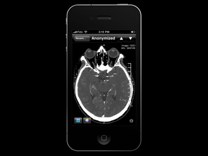 tac Ross Mitchell ResolutionMD Mobile paziente medici Journal of Medical Internet Research ictus diagnosi Calgary Scientific applicazioni Iphone analisi