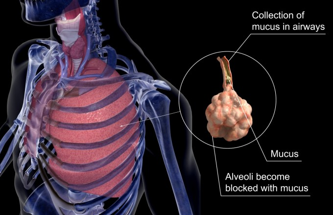 Mucous clogs the aveoli in the the lungs of cystic fibrosis patients.  - Image by © 3d4Medical.com/Corbis