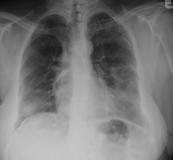 Asbestosi dovuta a inalazione di absesto e eternit