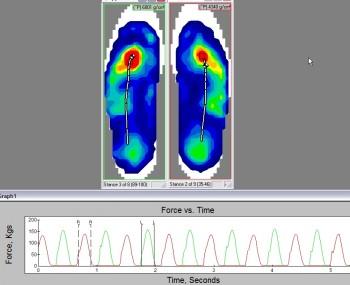 F-Scan - Forze esercitate dal piede nella scarpa