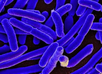 I batteri resistenti potrebbero causare milioni di morti, Foto Niaid/Flickr