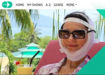 Turismo sanitario, bisturi trip, chirurgia plastica