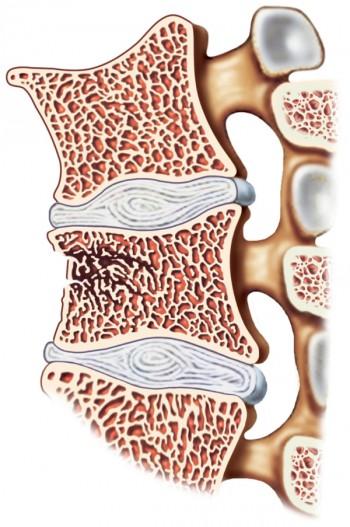 osteoporosi, spazio, cellule