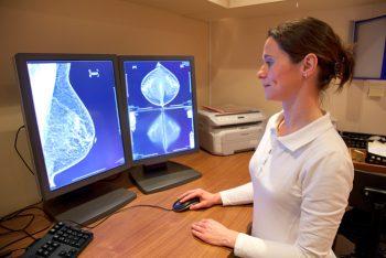 mammografia, tumore, seno, prevenzione