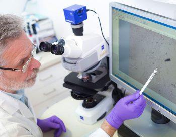 vaccinazioni tumore del polmone sistema immunitario malattie neurodegenerative immunoterapia genomica effetti collaterali copertura vaccinale cellula neoplastica cancro