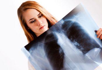 cancro, guarigioni, tumore, donne