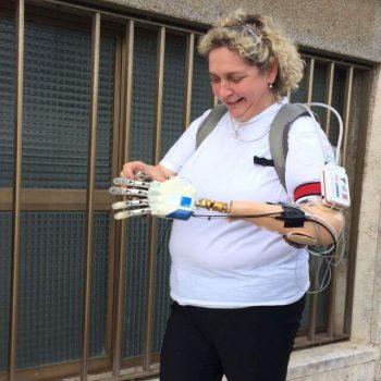mano bionica, trapianto, mascarella