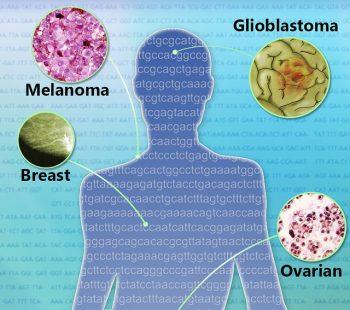 glioblastoma, lasorella, iavarone, tumore