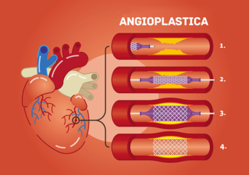 angioplastica, bypass, cuore, infarto