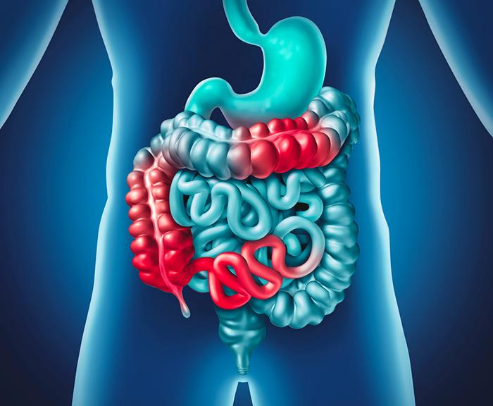 malattia crohn, cura, intestino, dieta