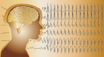 epilessia, farmaci, bimbi, sinpia