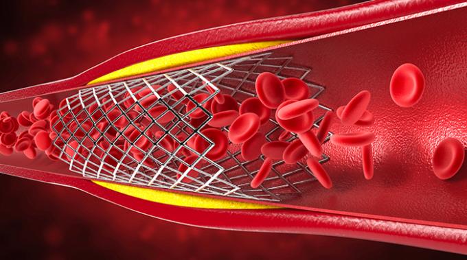 angioplastica, cuore, infarto, coronaria, stent