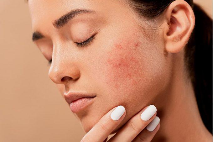 Ragazza con acne sul viso