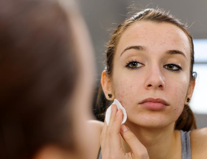 acne, pelle, dieta, cicatrici, brufoli