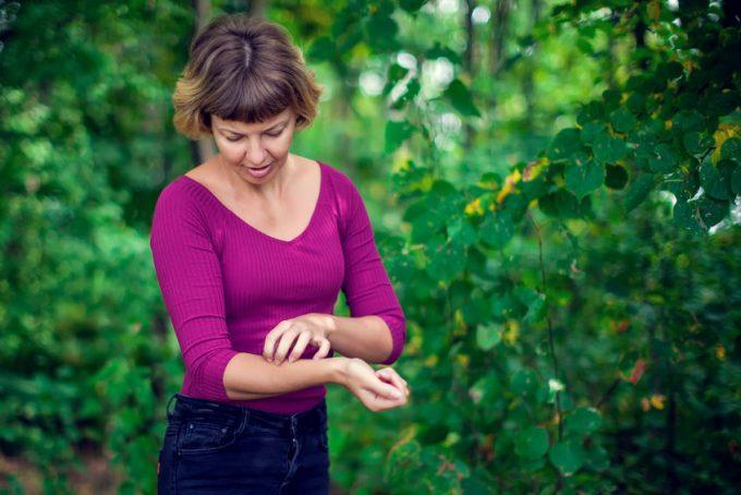 Donna con prurito per puntura di zanzara