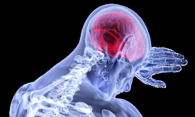 salute malattie cardiovascolari ictus cerebrale benessere