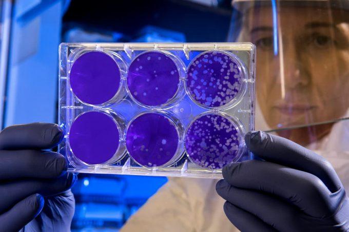 Virus e batteri in laboratorio
